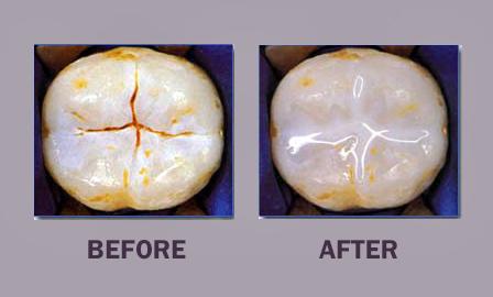 dental sealants dr mancuso fair lawn nj