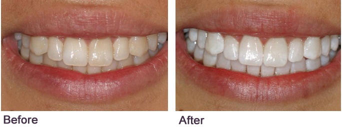 teeth whitening Dr. Mancuso fair lawn nj