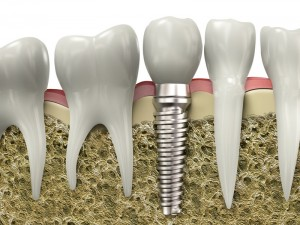 dental implants dr mancuso fair lawn nj