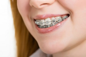 Fair Lawn Orthodontics