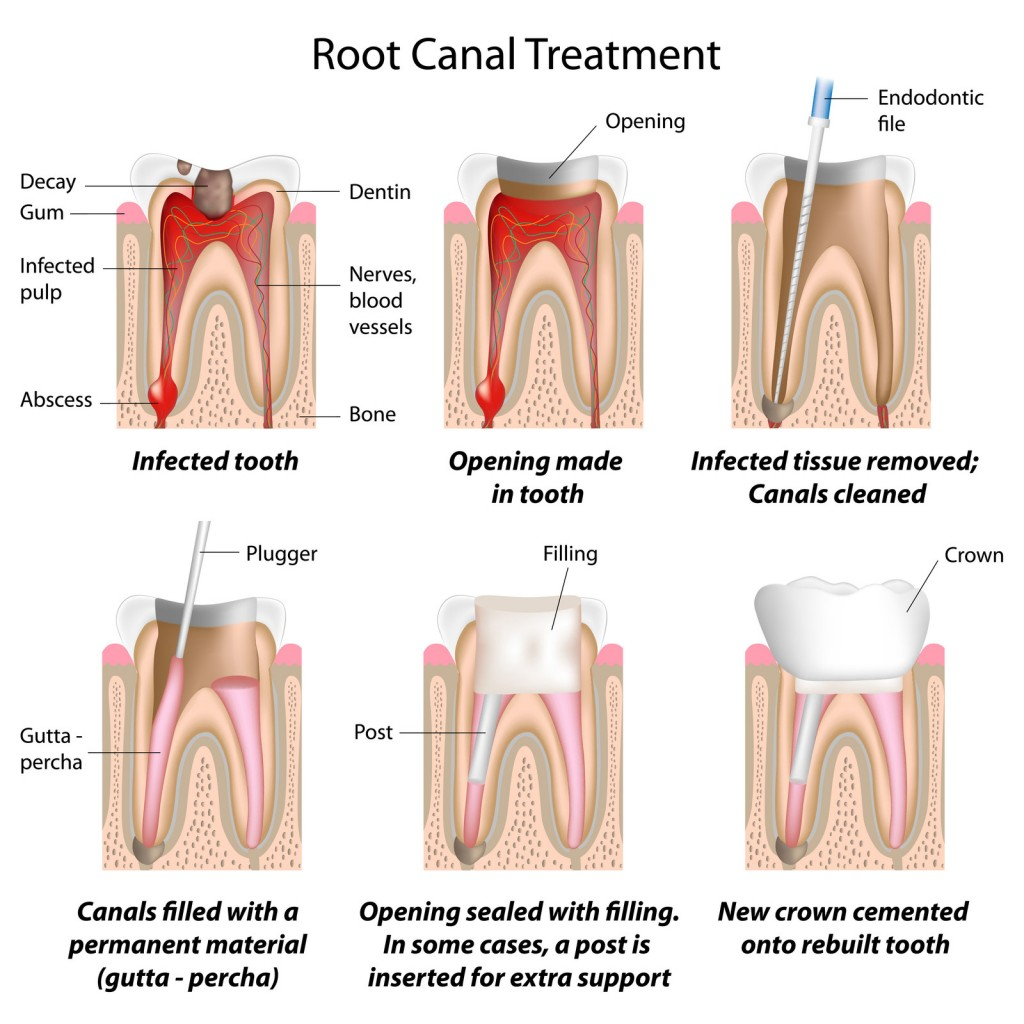 root canal dr. mancuso fair lawn, nj